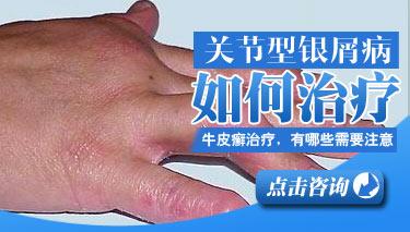 治疗关节型银屑病有什么办法