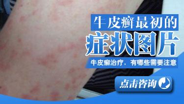 银屑病的初期症状是什么表现