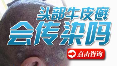 头部牛皮癣怎样治疗